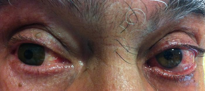 Paciente con córnea opaca en su ojo derecho