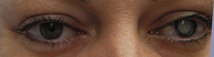 Paciente con patología en su ojo izquierdo