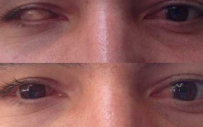 Lentes de Contacto Protésicas