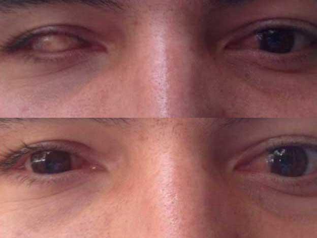 31e294e8c6 Lentes de Contacto Protésicas - Optica Morató